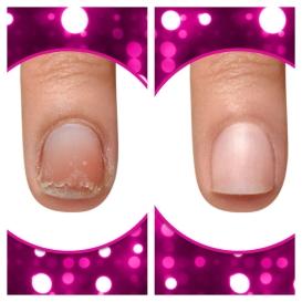 peeling nail